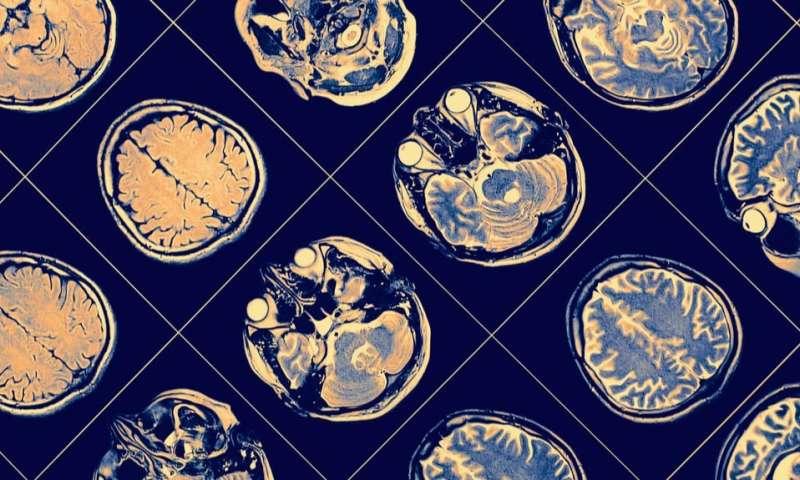 Experimental cancer drug shows promise for Parkinson's