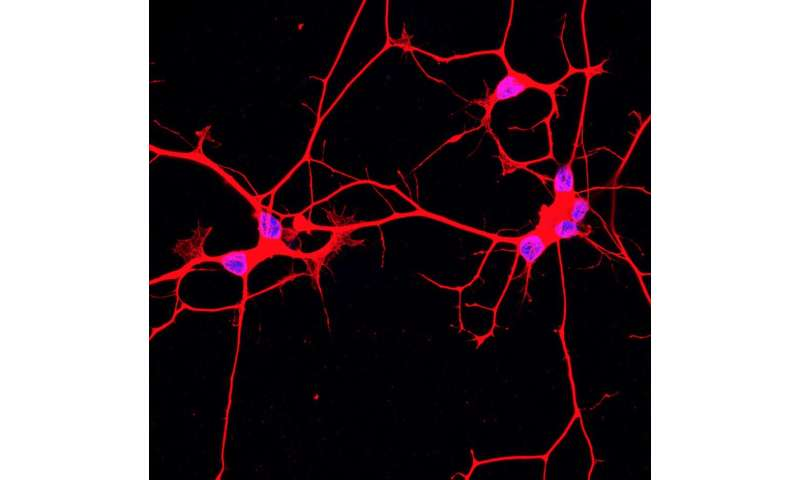 New technique helps uncover changes in ALS neurons