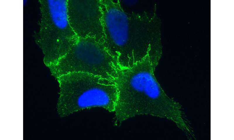 Study identifies how hantaviruses infect lung cells