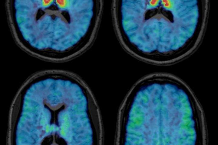 New nuclear medicine tracer will help study the aging brain