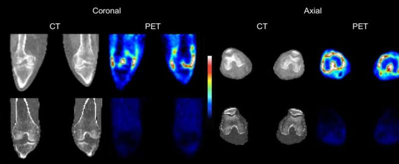 Novel PET imaging method more fully evaluates extent of rheumatoid arthritis inflammation