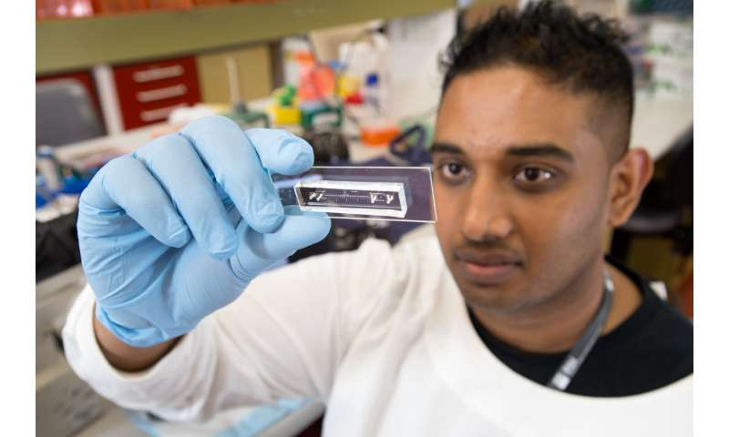 Simple test to predict likely spread of rare cancer