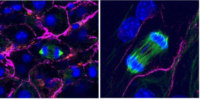 3D cell environment key for divvying up chromosomes -- find could explain cancer hallmark