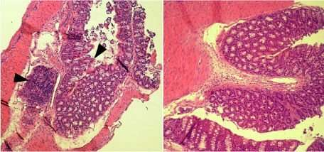 Defense against intestinal infection in organism is affected by prostaglandin E2