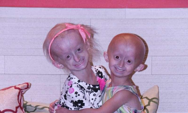 Experimental drug extends survival in progeria