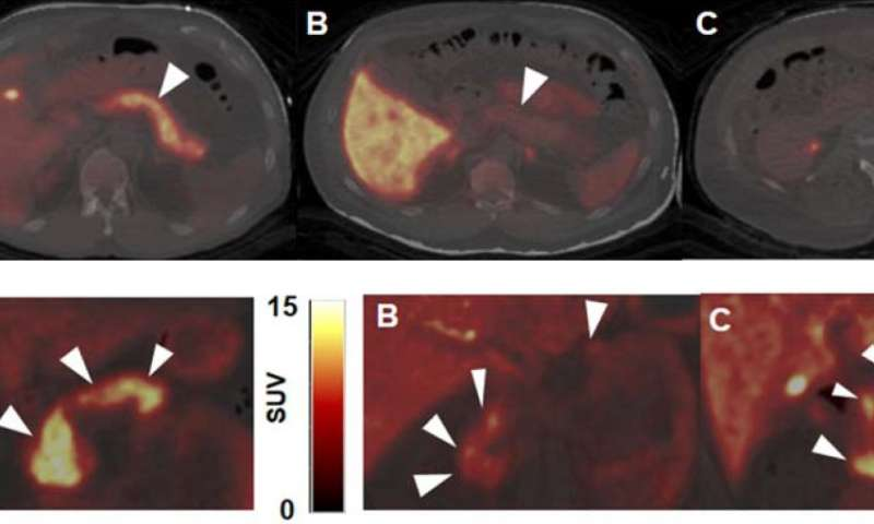 Novel PET imaging method could track and guide therapy for type 1 diabetes
