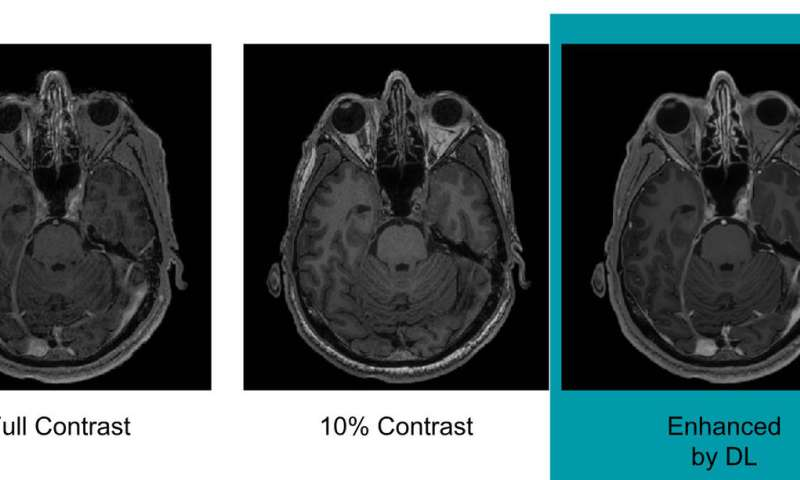 Artificial intelligence may help reduce gadolinium dose in MRI