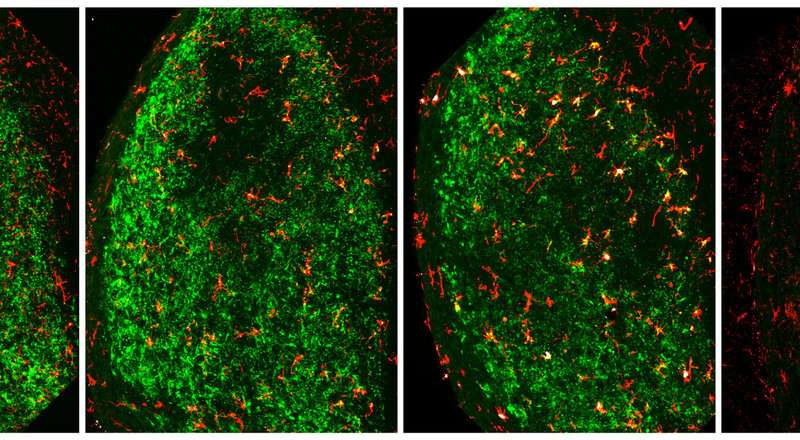 Researchers identify brain cells responsible for removing damaged neurons after injury