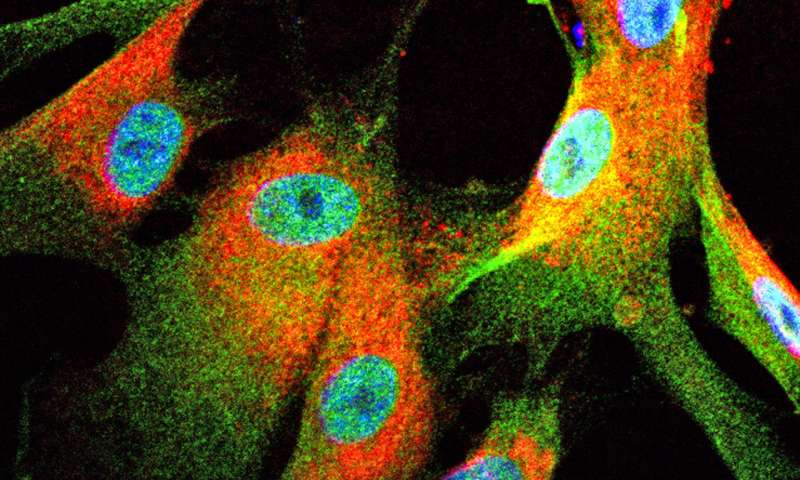 Study suggests way to attack deadly, untreatable nerve tumors