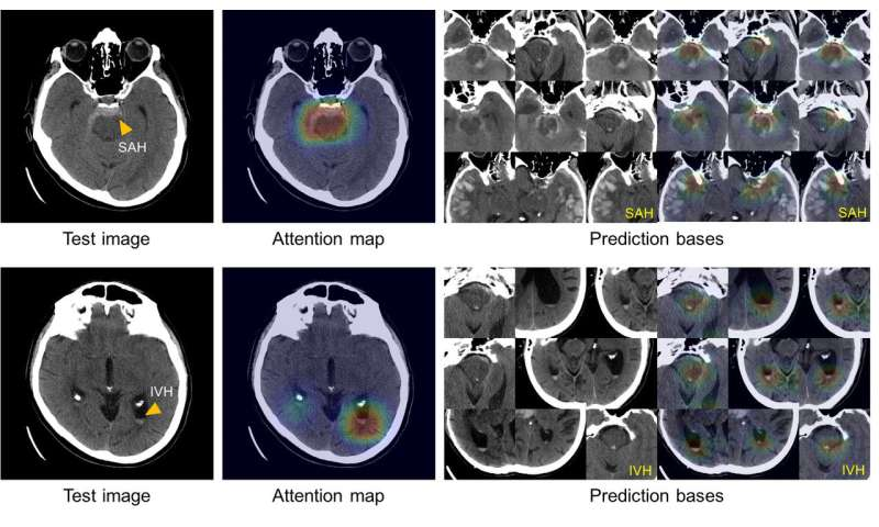 Artificial intelligence system learns to diagnose, classify intracranial hemorrhage