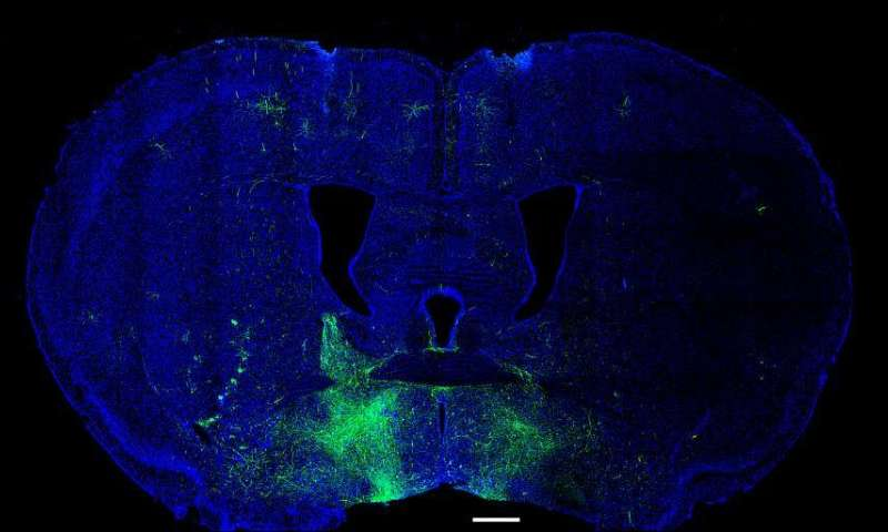 Researchers identify key brain circuits for reward-seeking and avoidance behavior