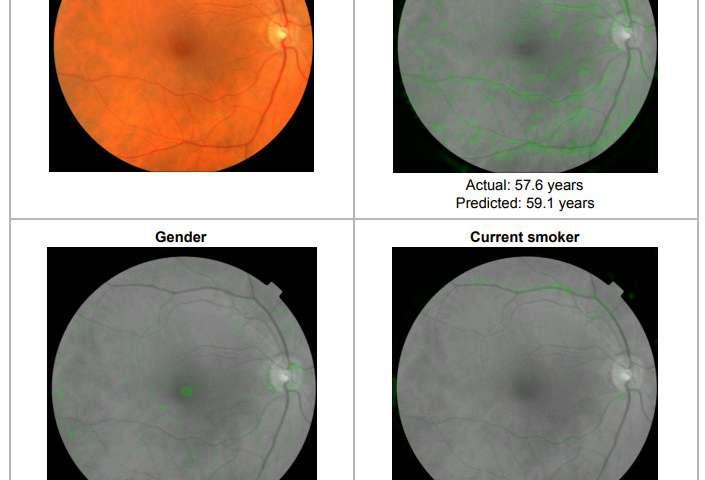 Eyes as a portal to cardiovascular risk factors