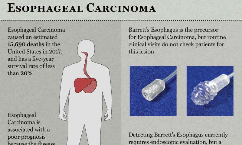 Researchers develop swallowable test to detect pre-cancerous Barrett's esophagus