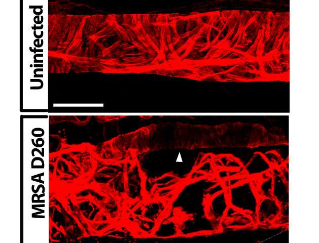 Study reveals how MRSA infection compromises lymphatic function