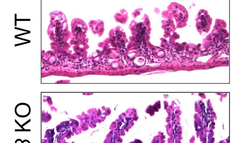 A possible way to protect intestinal walls from damage due to chemotherapy