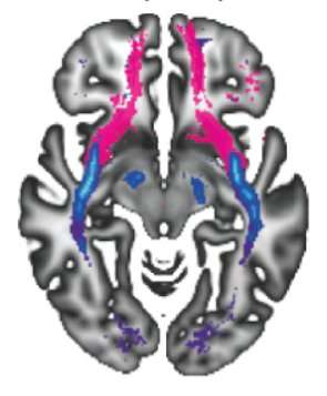 Pathways in the young brain are associated with susceptibility for mental disorders