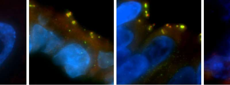 Amplification of key cellular organizer may initiate cancer, study suggests