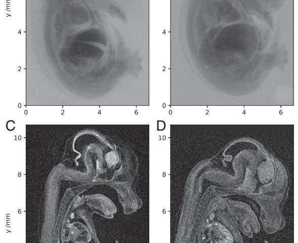 Researchers report micro-CT scan of a mouse embryo at unprecedented resolution