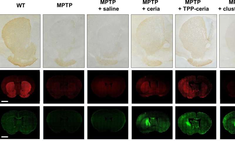 New ceria nanoparticles attack Parkinson's disease from three fronts