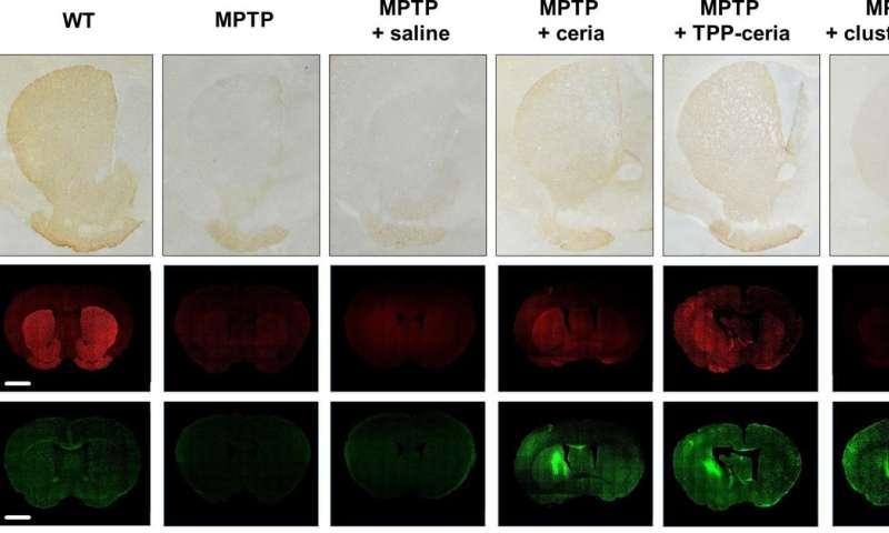 Le nuove nanoparticelle di ceria attaccano il morbo di Parkinson da tre fronti