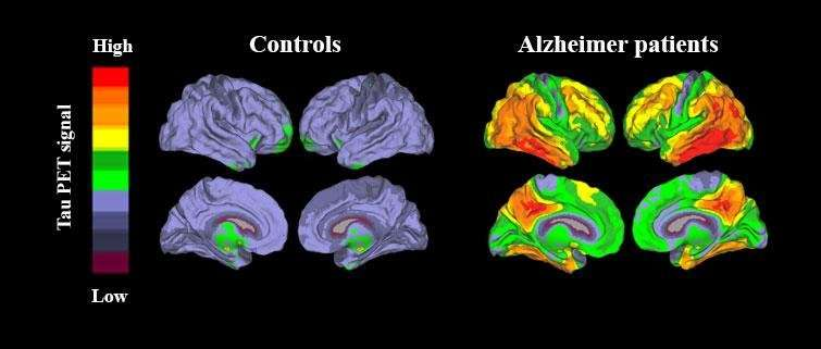 New Method Enables Accurate Diagnosis Of Alzheimer U0026 39 S Disease