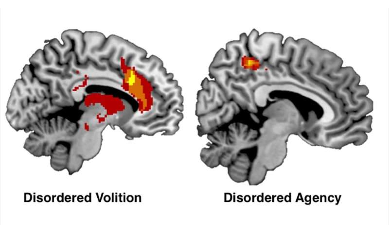 Study looks at brain networks involved with free will
