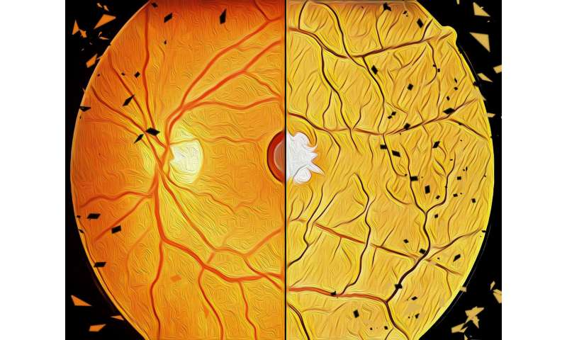 Pathomechanisms deciphered for the two most common age-related eye disorders