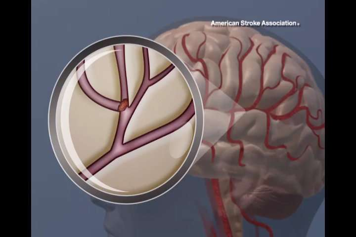 Experimental vaccine may reduce post-stroke blood clot risk