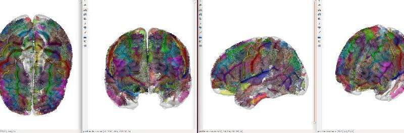 A new brain imaging study challenges the dominant theoretical model of autism spectrum disorders