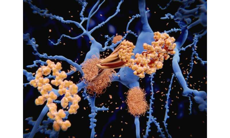 Alzheimer's disease – don't give up on plaque-busting drugs just yet
