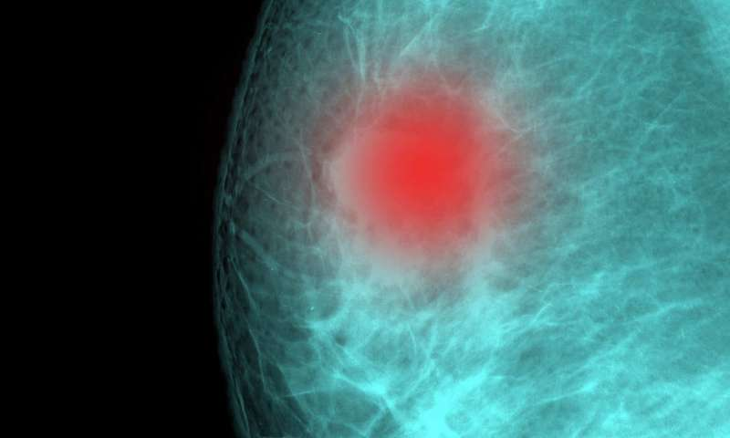 Breast cancer researcher warns against online genetic tests