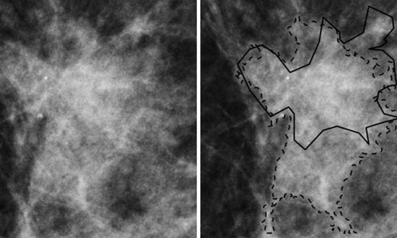 Novel technique may significantly reduce breast biopsies