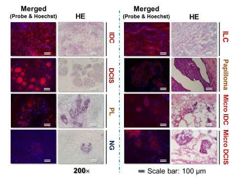 Scientists develop system to rapidly and accurately detect tumor margins during breast cancer surgery