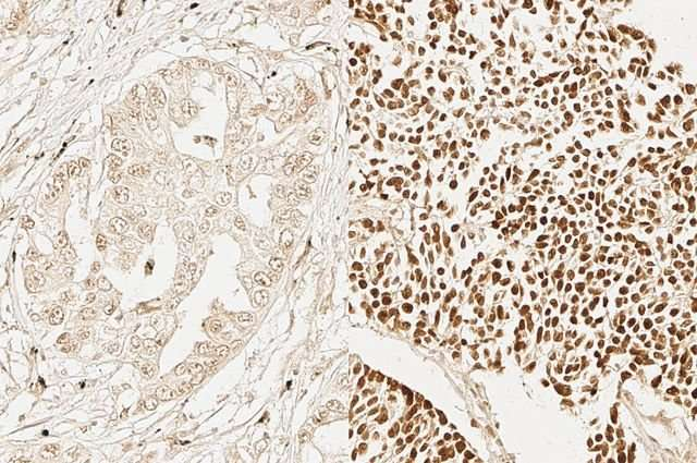 Researchers Find Adult Stem Cell Characteristics In