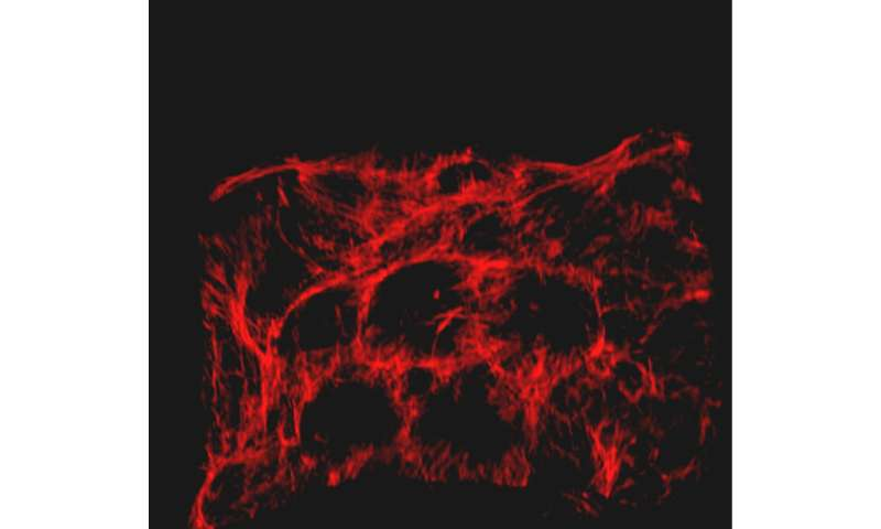 Researchers create a more effective hydrogel for healing wounds