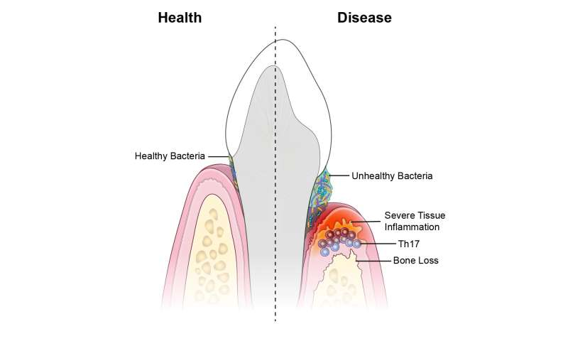 Researchers identify immune culprits linked to inflammation and bone loss in gum disease