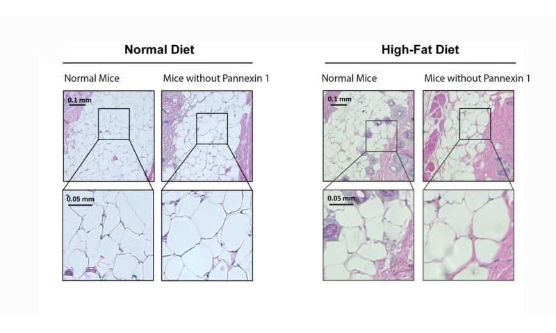Researchers uncover gene that regulates fat accumulation and obesity