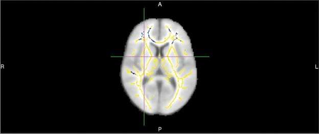 Researchers use MRI to predict Alzheimer's disease