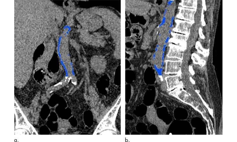 Abdominal Aortic Calcification May Signal Future Heart Attack