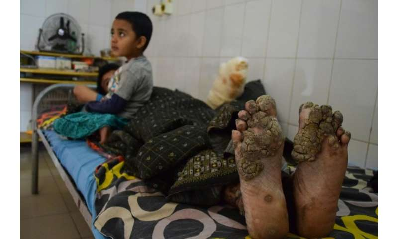 After 24 surgeries, Bangladesh 'tree man' relapses