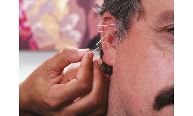 Acupuncture: A new look at an ancient remedy