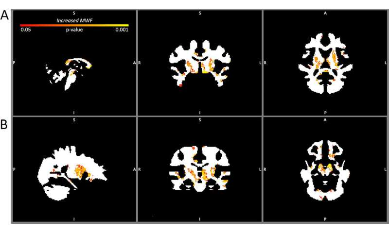 Acute and chronic changes in myelin following mild traumatic brain injury