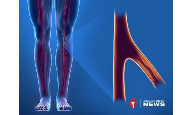 AHA: obesity may increase risk for peripheral artery disease