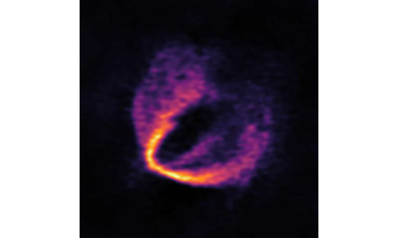 Trio of infant planets discovered around newborn star Almadiscover