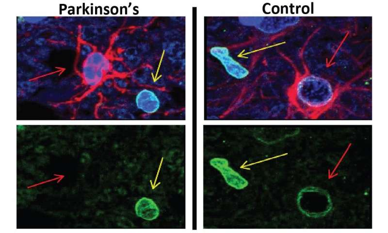 A new therapeutic avenue for Parkinson's disease