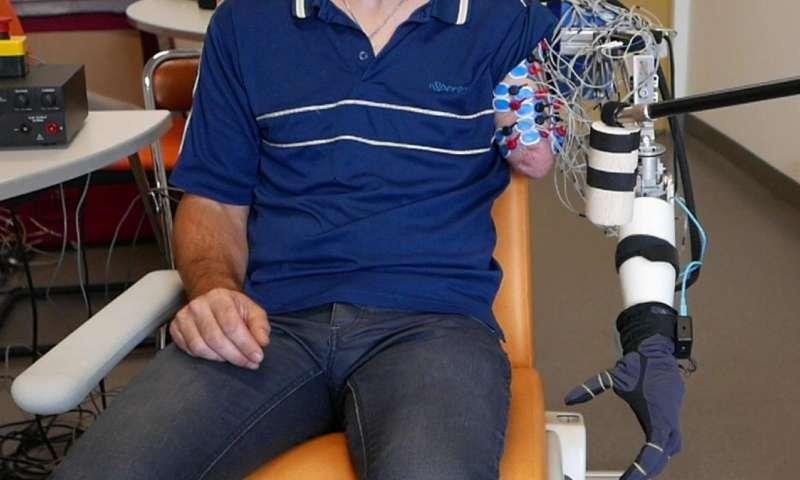 A prosthetic arm that decodes phantom limb movements