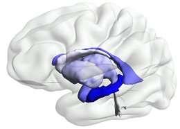Asymmetrical neuron loss in Alzheimer's