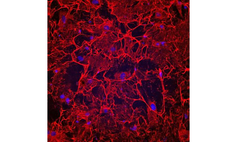 Blocking matrix-forming protein might prevent heart failure