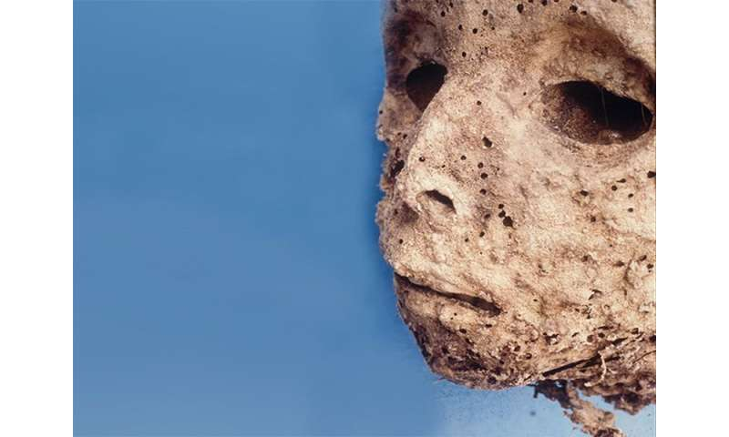 Boy who died 450 years ago gives clues to hepatitis research