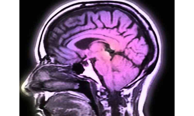 Brain iron on MRI linked to disability in multiple sclerosis